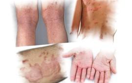 Chăm sóc da ở bệnh nhân viêm da cơ địa