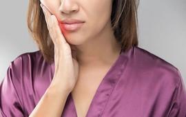 Bệnh viêm nhiễm vùng miệng - hàm mặt