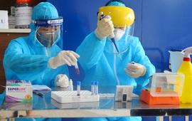 Việt Nam tăng cường năng lực xét nghiệm SARS-CoV-2, chuẩn bị cho kịch bản 30.000 ca bệnh