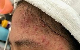 Các bệnh da liễu thường gặp vào mùa hè