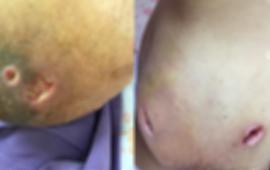 Vú nhiễm trùng chảy mủ sau khi đắp lá điều trị tắc tuyến sữa