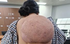Cứu người phụ nữ gánh trên vai khối u khổng lồ