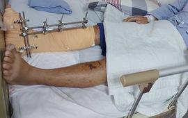 Cứu bệnh nhân dập nát cẳng chân do tai nạn giao thông