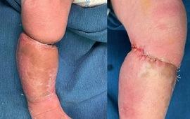 Phẫu thuật tạo hình cho bé trai sơ sinh mắc hội chứng vòng thắt bẩm sinh
