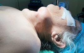 Bướu giáp khổng lồ khiến cụ bà 77 tuổi ăn không ngon, ngủ không yên