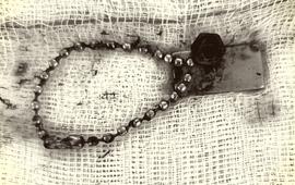 Bé 6 tuổi thủng ruột do nuốt vòng kim loại có nam châm