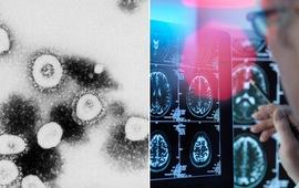 """Giới khoa học tìm cách lý giải di chứng """"sương mù não"""" ở bệnh nhân COVID-19"""