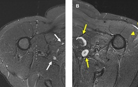 Nổi hạch - tác dụng phụ của tiêm vaccine  COVID-19 dễ nhầm với ung thư