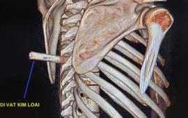 Mang cả mũi dao xuyên cột sống vào phòng phẫu thuật