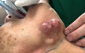 Phát hiện ung thư tuyến nước bọt giai đoạn muộn vì chần chừ điều trị