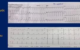 Cứu sống bệnh nhi 9 tuổi nhịp tim nhanh kịch phát 229 lần/phút