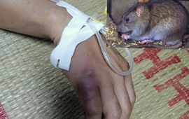 Kết quả xét nghiệm trường hợp nghi mắc bệnh dịch hạch tại Cao Bằng