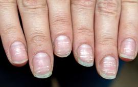 COVID-19: Triệu chứng đáng chú ý ở móng tay và chân
