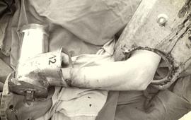 Nhập viện cấp cứu vì bàn tay bị cuốn vào máy xay
