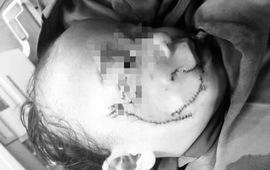 Bé 3 tuổi bị chó nhà cắn tổn thương vùng mặt