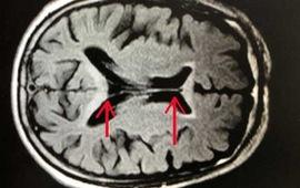 Người đàn ông tổn thương não do thường xuyên uống rượu
