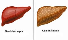 Những dấu hiệu nhận biết gan nhiễm mỡ