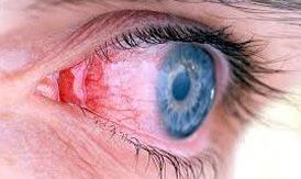 Viêm màng bồ đào tại sao khó điều trị?