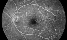Chụp mạch huỳnh quang: Kiểm tra các vấn đề tuần hoàn máu võng mạc