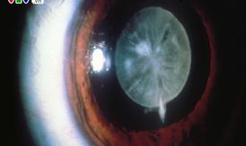 Vì sao mắt nhìn mờ sau phẫu thuật đục thủy tinh thể?