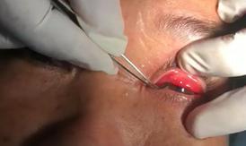 Làm gì khi bị côn trùng bay vào mắt?