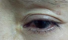Bảo vệ an toàn cho đôi mắt trong dịp nghỉ Tết