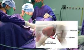 Phương pháp TOT - Xóa mặc cảm són tiểu ở phụ nữ
