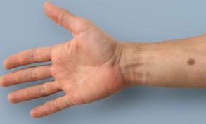 Phát hiện ung thư nhờ máy cảm ứng đo sự phát triển của nốt ruồi