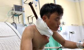 Khánh Hòa: Cứu sống bệnh nhân bị cây sắt đâm xuyên cổ xuống ngực
