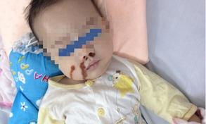Trẻ bị bỏng nặng do mẹ nhỏ nhầm axit vào mũi