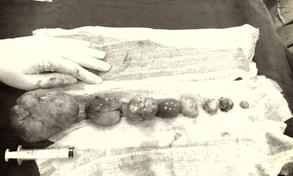 Bóc đa u xơ tử cung trong điều trị vô sinh