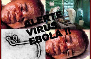 Đại dịch Ebola
