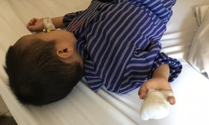 Bắt chước mẹ thái chuối, bé trai 4 tuổi phải cắt mất 2 đốt ngón tay
