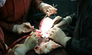 Thuyên tắc ối: Mổ bắt thai song sinh, sản phụ ngưng tim ngưng thở