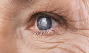 Bệnh võng mạc đái tháo đường: Hiểm họa ngầm gây mù lòa