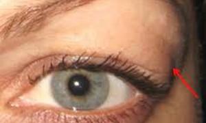 Bệnh basedow biến chứng ở mắt