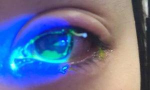 Sưng mí mắt và nguy cơ bệnh lý có thể mắc phải