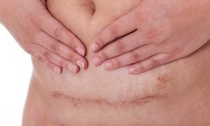 Chăm sóc vết mổ sau sinh như thế nào?