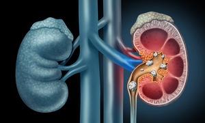 Vitamin C có thể làm tăng nguy cơ mắc bệnh sỏi thận ở nam giới