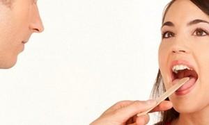 Những cách đơn giản phòng ung thư lưỡi