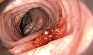 Những thói quen ăn uống dễ sinh bệnh ung thư đại trực tràng