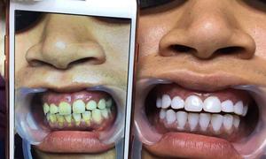 Phủ trắng răng nano: Các spa thẩm mĩ có thể bị phạt từ 50-70 triệu đồng