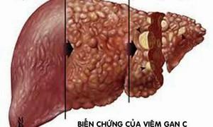 Những hiểu lầm tai hại về bệnh viêm gan virus