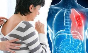 Ăn gì để phòng ngừa ung thư phổi?