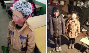 Trung Quốc: Cậu bé tóc đóng băng đi học được hỗ trợ hàng triệu USD