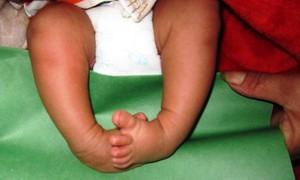Cơ hội cho các trẻ mắc bệnh bàn chân khoèo bẩm sinh