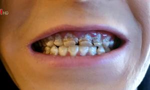 Mục nát răng vì uống nhiều nước tăng lực