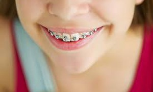 Nguy hiểm khi niềng răng sai cách