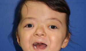 6 lần phẫu thuật cứu bé mắc hội chứng hẹp hộp sọ phức tạp hiếm có trên thế giới