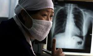 Trung Quốc công bố kế hoạch xóa sổ bệnh lao